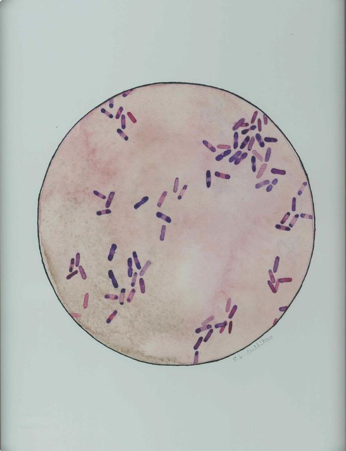 Burkholderia pseudomallei print